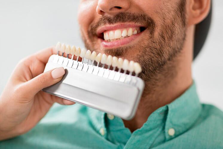 Escala de color de les dents: quants blancs hi ha