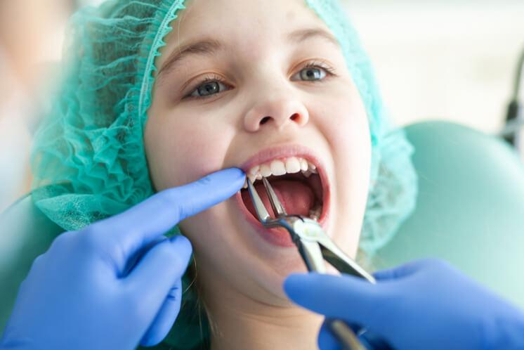 extracció de premolars